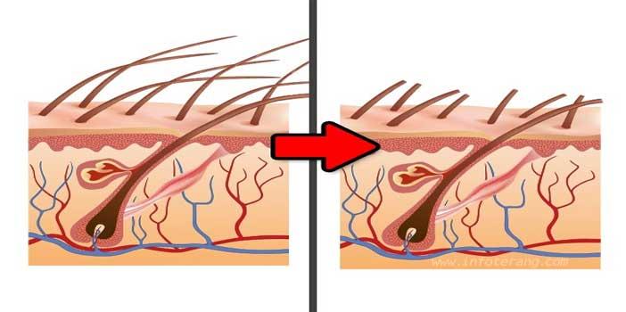 Mitos Hoax Mencukur Rambut Membuatnya Lebih Tebal